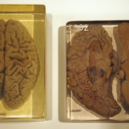The Anatomical Theater: Brain (Part 1)