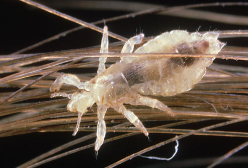 photolibrary_rm_photo_of_louse_on_human_hair